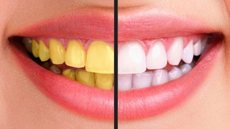 3 Cara Alami Membersihkan dan Memutihkan Gigi